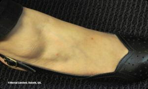human foot bites