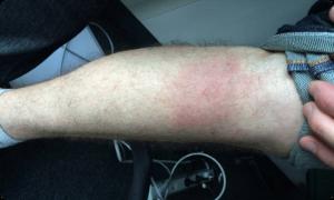 human leg bites